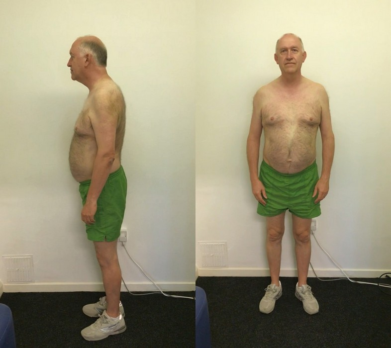 Ray's posture before starting private programme at Life Force Fitness